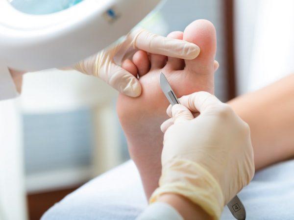 podologia clinica